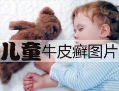 儿童牛皮癣图片.jpg