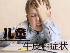 儿童牛皮癣症状.jpg